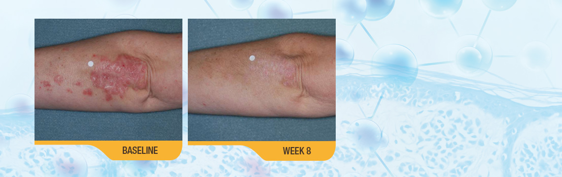The Results Speak For Themselves. SORILUX Foam Has Been Proven Effective For Body Psoriasis