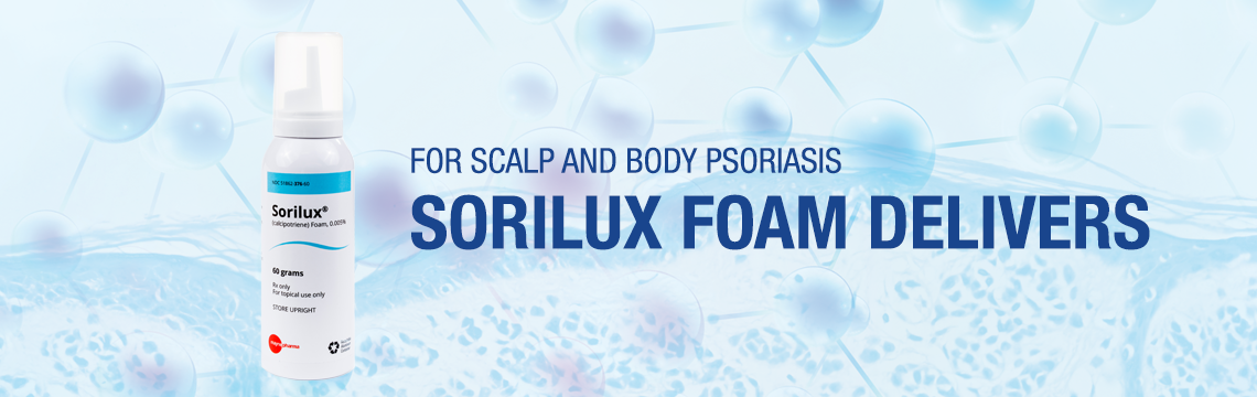 For scalp and body psoriasis, SORILUX Foam delivers. Image of a can of Sorilux calcipotriene foam, 0.005 percent , 60 grams, for topical use only, Mayne Pharma