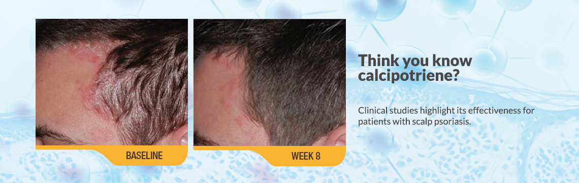 Think you know calcipotriene? Clinical studies highlight its effectiveness for patients with scalp psoriasis. An image showing psoriasis on forehead and left side of scalp of an actual patient, a white male with brown hair at baseline. Caption: baseline. Another image of the same male with psoriasis mostly cleared up at week 8 of clinical studies of Sorilux calcipotriene foam. Caption: week 8