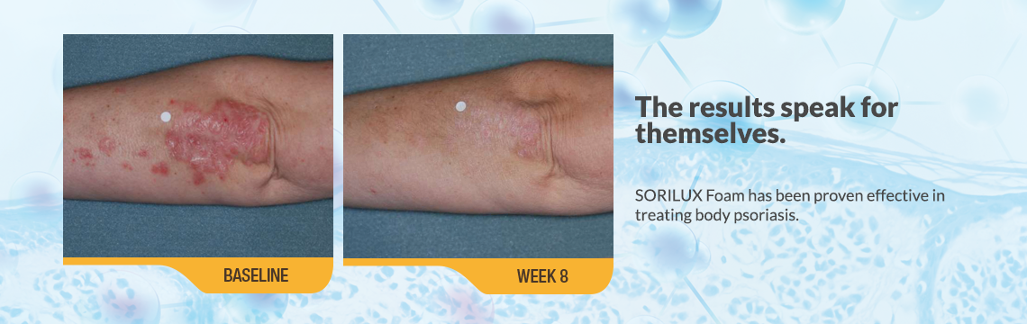 The results speak for themselves. SORILUX Foam has been proven effective in treating body psoriasis. An image showing psoriasis on an elbow (underside) of an actual patient, at baseline. Caption: baseline. Another image showing cleared up psoriasis on an elbow (underside) of the same patient at week 8 of clinical studies of Sorilux calcipotriene foam. Caption: week *