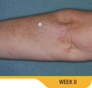 Baseline And 8 Weeks Elbow Results Photo Of An Actual Patient Who Achieved Treatment Success With SORILUX Foam