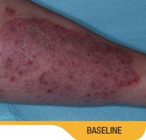 Baseline And 8 Weeks Leg Results Photo Of An Actual Patient Who Achieved Treatment Success With SORILUX Foam