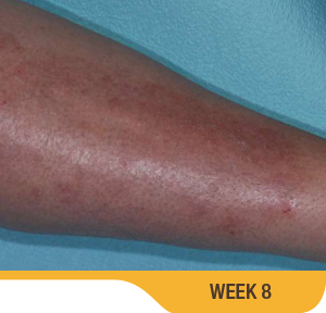 Image showing cleared up psoriasis on calf of an actual patient at week 8. Sorilux calcipotriene foam, clinical studies