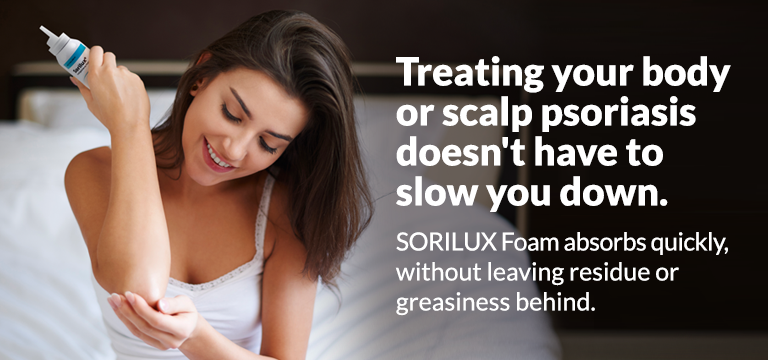 Treating your body or scalp psoriasis doesn't have to slow you down. SORILUX Foam absorbs quickly without leaving residue or greasiness behind
