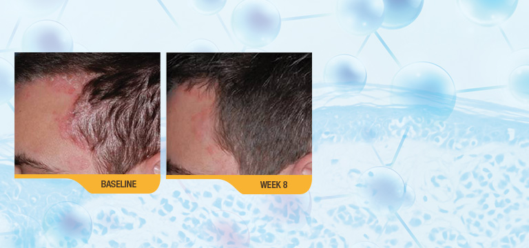 Think You Know Calcipotriene? Clinical Studies Highlight Its Effectiveness For Patients With Scalp Psoriasis