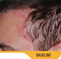 Image showing mostly cleared up psoriasis on forehead and left side of scalp of a white male with brown hair. Sorilux calcipotriene foam, clinical studies, psoriasis at week 8, actual patient]