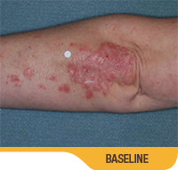 Image showing psoriasis on an elbow (underside) of an actual patient at baseline. Sorilux calcipotriene foam, clinical studies