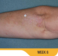 Image showing cleared up psoriasis on an elbow (underside) of an actual patient at week 8. Sorilux calcipotriene foam, clinical studies
