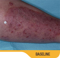 Image showing psoriasis on calf of an actual patient at baseline. Sorilux calcipotriene foam, clinical studies.